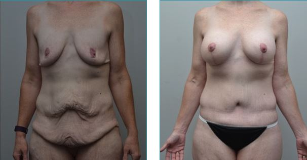 Tummy tuck before-and-after photos