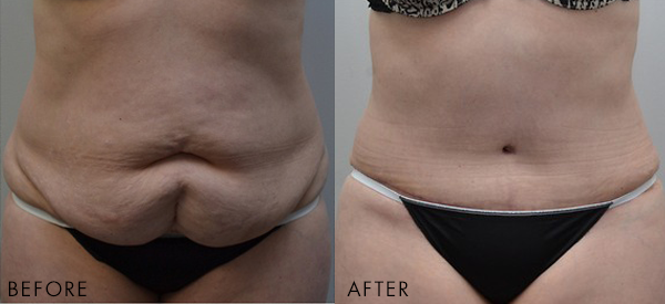 Before and after tummy tuck and liposuction