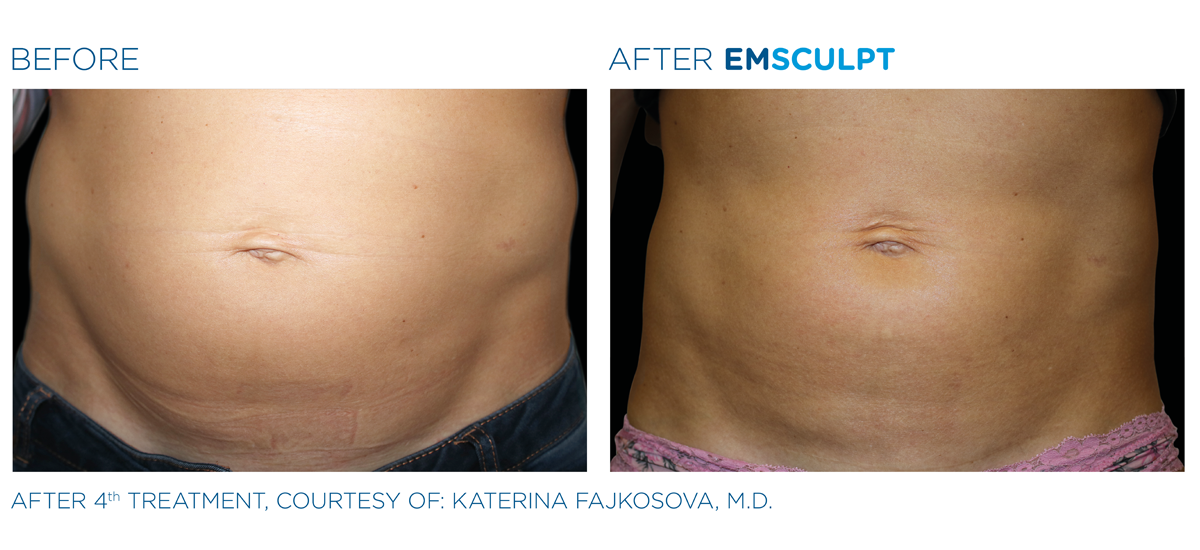 Before and after Emsculpt treatment