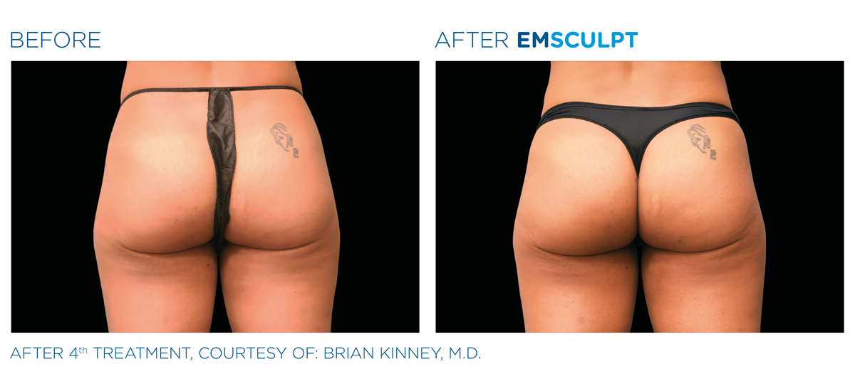 Emsculpt before and after on buttocks.