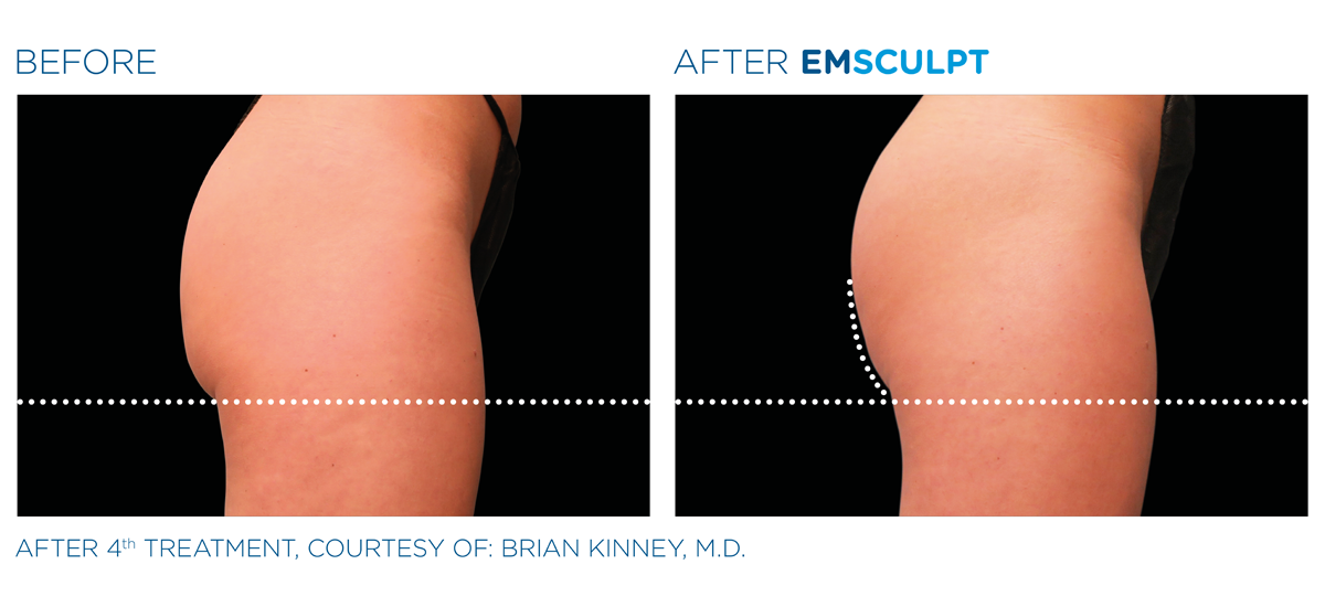 View how Emsculpt works