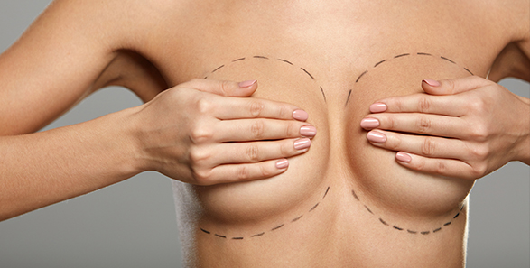 Model covering breasts with hands with surgery marker markings