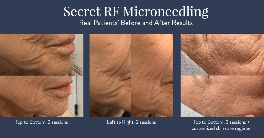 Secret RF Microneedling results at Rockmore Plastic Surgery.