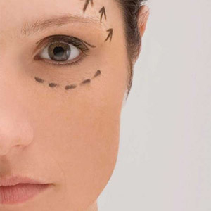 Close-up of the left side of a woman\'s face with a dotted black line drawn below her eye and arrows drawn above her brow.