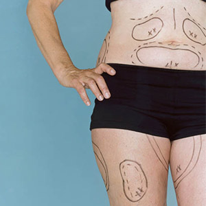 Torso and upper leg shot of a woman with surgical black ink markings on her tummy, flanks, and thighs.