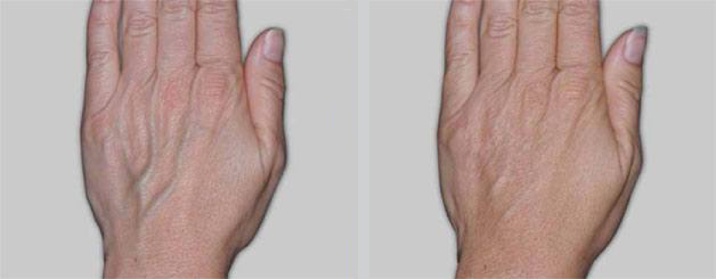 Views of a woman\'s hands before and after Radiesse dermal filler injections to reduce the appearance of veins and aging.